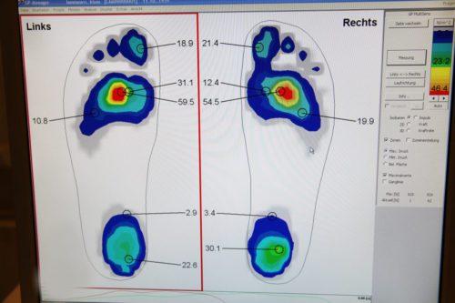Pedographie in der Orthopädiepraxis Bad Essen