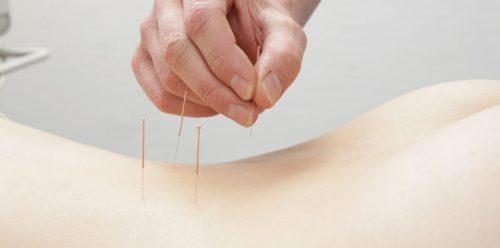 Akupunktur Therapie Behandlung als Schmerztherapie in der Orthopädiepraxis Bad Essen