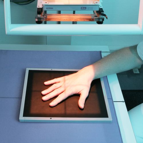 Digitales Röntgen in der Orthopädiepraxis Bad Essen